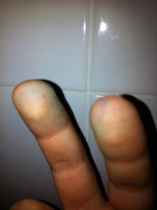 Los dedos azules varias horas después