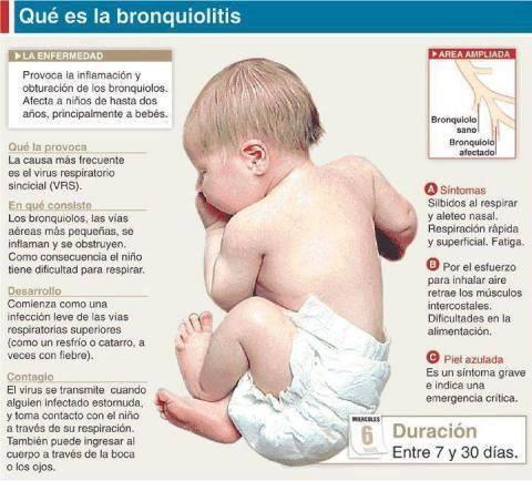 Infografía de bebé y resumen de bronquiolitis