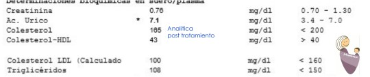 Analítica post